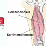 Action Sports - Feature Image - Hamstring Tears
