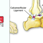 ankle sprains - Action Sports Clinic
