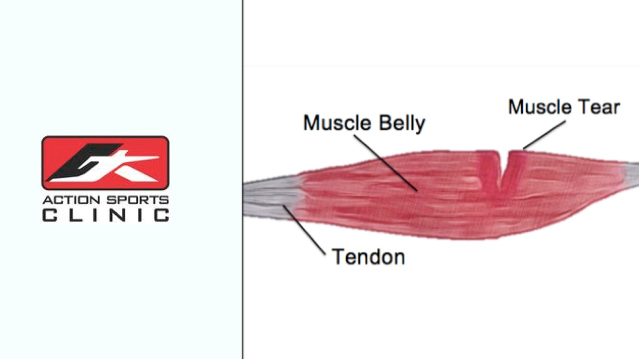 The Four Biggest Mistakes You Can Make After A Muscle Tear