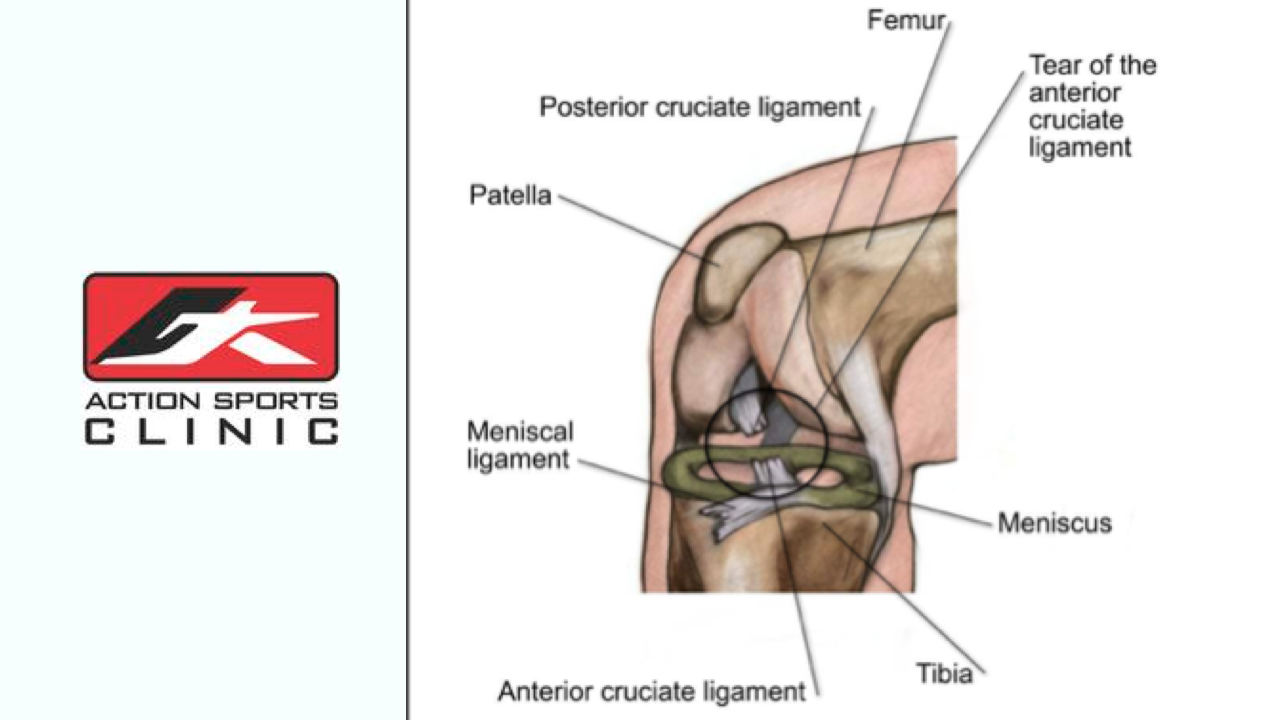 Physio Calgary - ACL Injury Featured Image